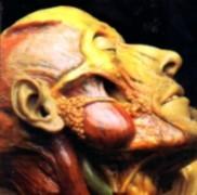 LYMPHATIC PHLEGM - 12'' - Show-off Cadavers - The Anatomy of Self Display