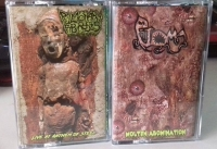 PULMONARY FIBROSIS / PTOMA - split Tape MC - Live At Anthem Of Steel / Molten Abomination
